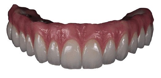 dental implant in Austin